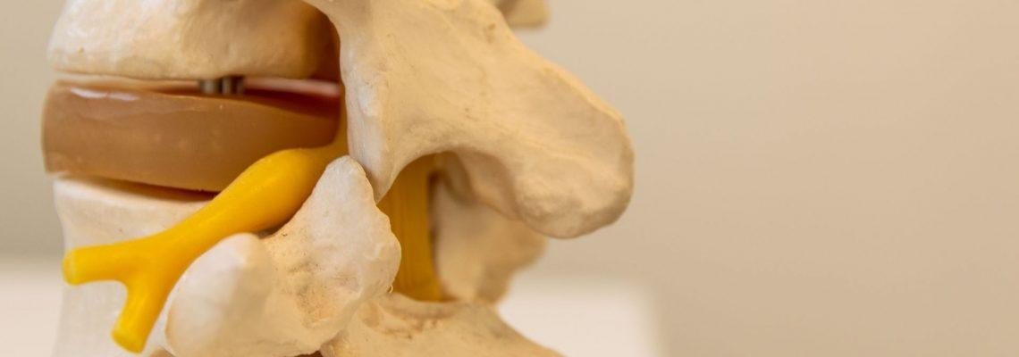 Spondilolisi: diagnosi e trattamento