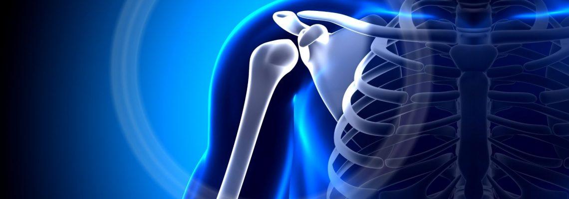 Artrosi acromion claveare: cura e riabilitazione