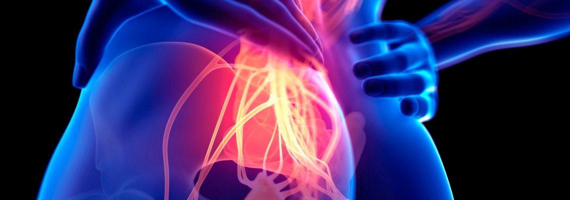 Lombocruralgia: ecco come guarire velocemente