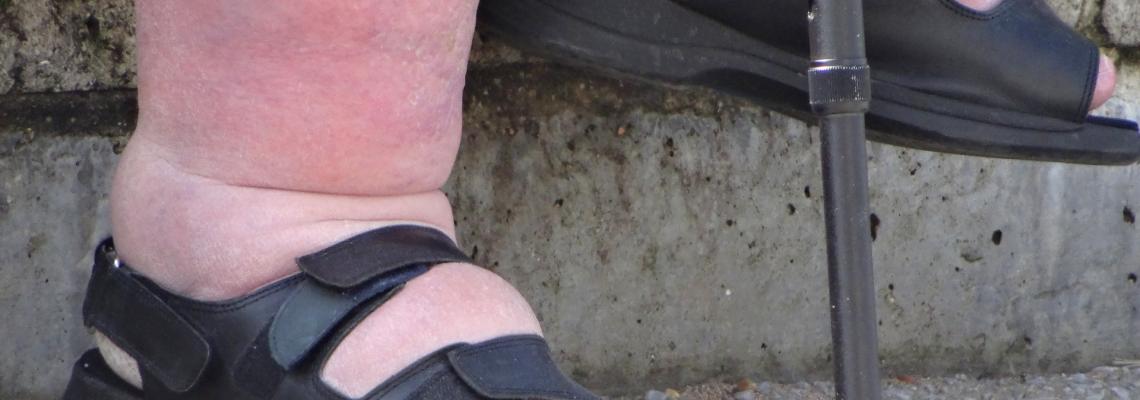 Caviglie gonfie: qual è la causa?